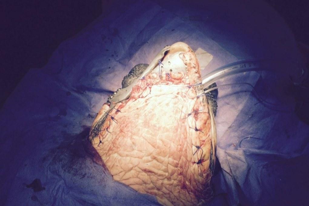 3dturtlesurgery1