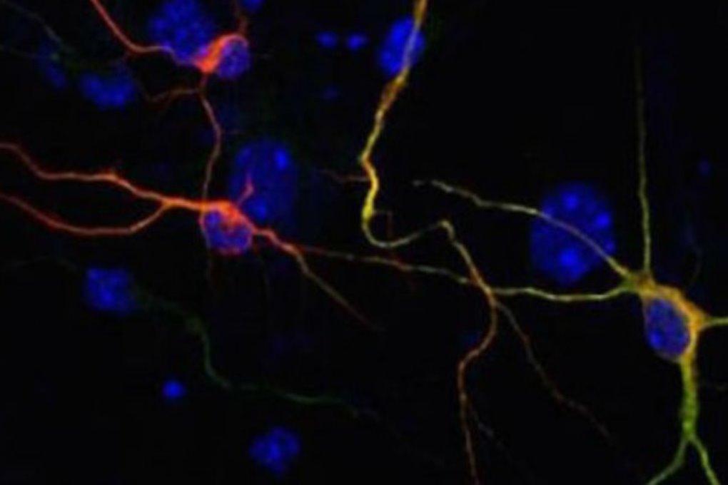Учёные превратили клетки кожи больных Альцгеймером в новые клетки мозга
