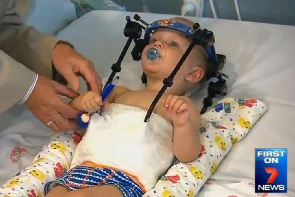 Хирурги пришили мальчику голову после аварии