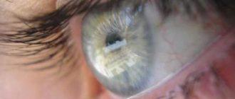 Впервые пересадили стволовые клетки для лечения слепоты